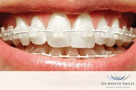 Six Month Smiles Braces Farnham