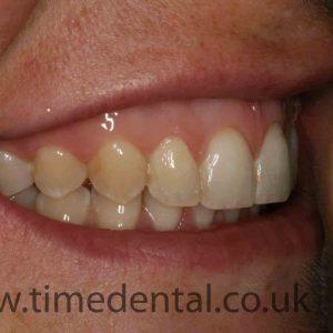Straight teeth Fleet dentist at Time Dental