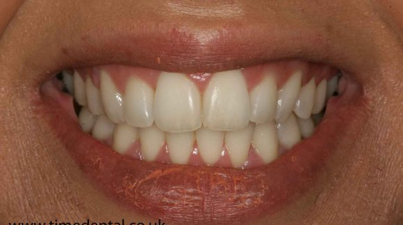 dentist-fleet