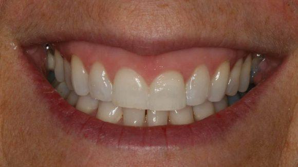 dentist-in-farnborough