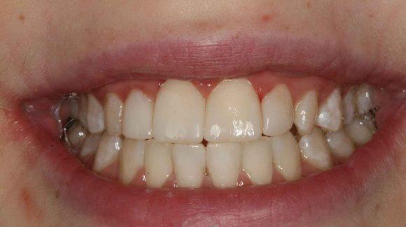 dental-tips