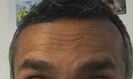 forehead-lines