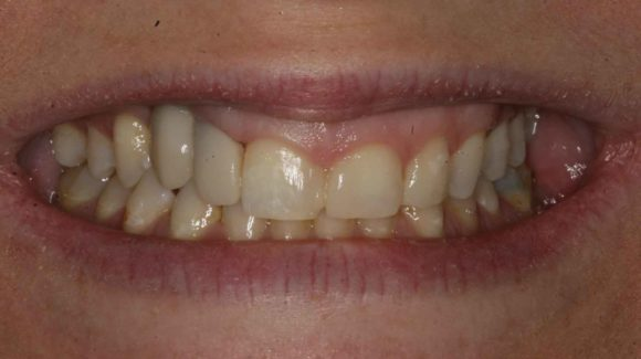 how-to-manage-bleeding-gums