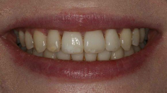 covid-safe-farnham-dentist