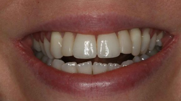 dental-health-crisis