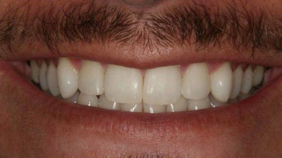 composite-bonding-at-dentist-in-farnham