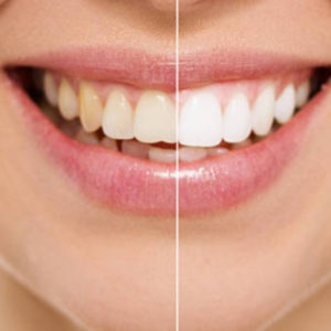 teeth whitening in farnham before and after